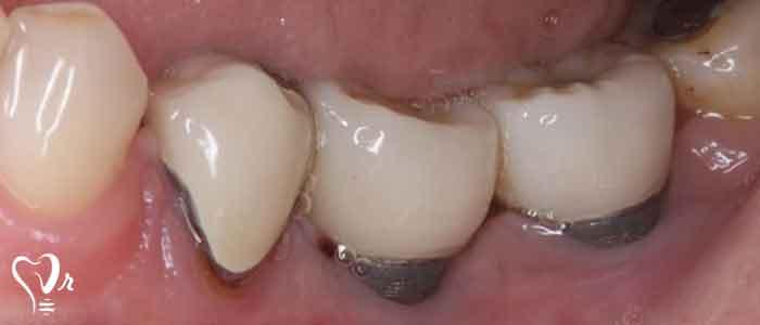 احتمال عفونت ایمپلنت دندان - روکش های ایمپلنت دندان