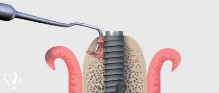 نکاتی در خصوص نگهداری ایمپلنت دندان - پزشک متخصص ایمپلنت