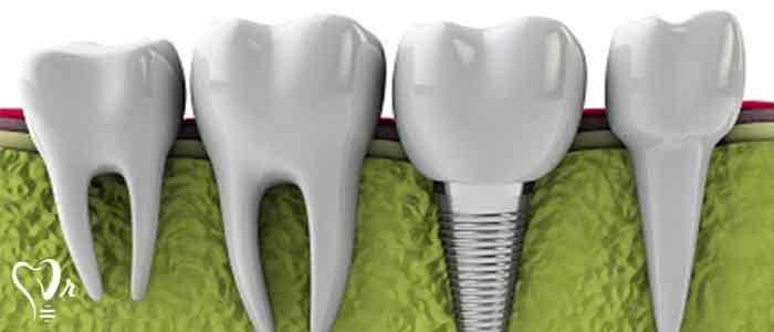 روش های درمان ایمپلنت دندان - انتخاب صحیح بیمار