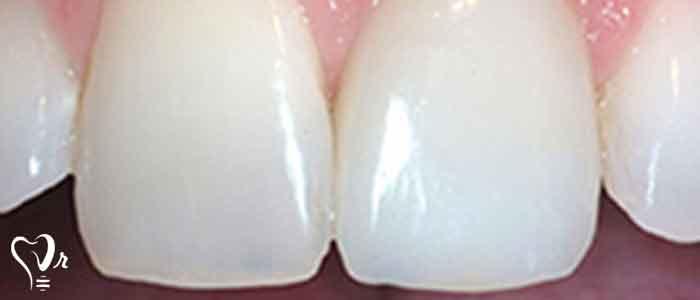 روش های درمان ایمپلنت دندان - معاینات موضعی