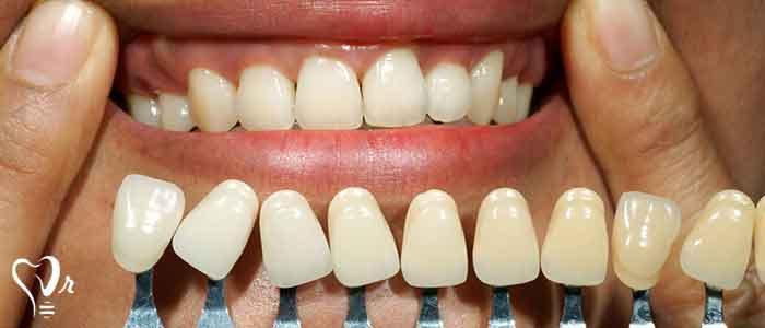 روش های درمان ایمپلنت دندان - مرحله اول جراحی ایمپلنت