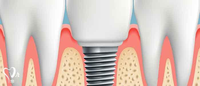 کاشت ایمپلنت دندان بدون نیاز به پیوند استخوان - جراحی ایمپلنت