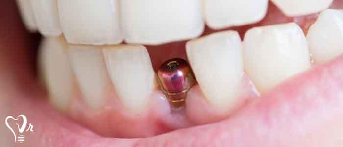 کاشت ایمپلنت دندان بدون نیاز به پیوند استخوان - ایمپلنت های دندانی