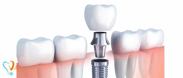 کاشت ایمپلنت دندان بدون نیاز به پیوند استخوان - جراحی پیوند استخوان