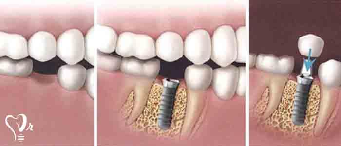 راه جایگزینی دندان با ایمپلنت دندان چیست؟ - ترمیم و بازسازی