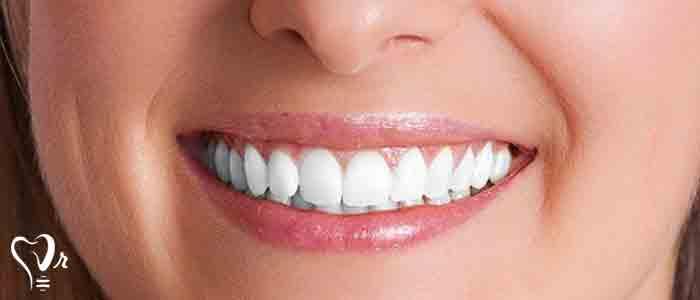 جایگزین دندان
