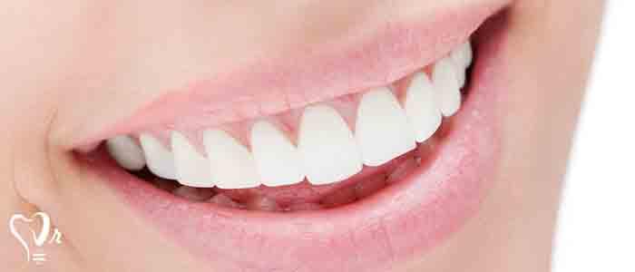 لمینت یا ونیر یک تکه نازک همرنگ دندان