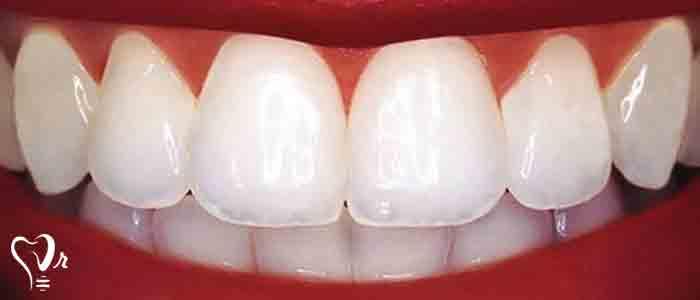 شکل- لمینت یا ونیر کردن دندان