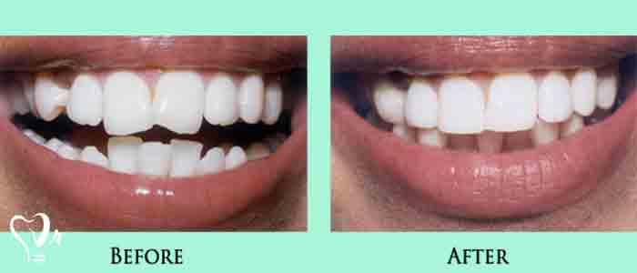 اصلاح نواقص جزئی که در ساختار دندان وجود دارد