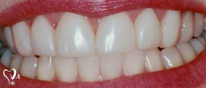 بستن فاصله بین دندانها