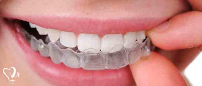 اصلاح ساییدگی و کوتاهی دندانها