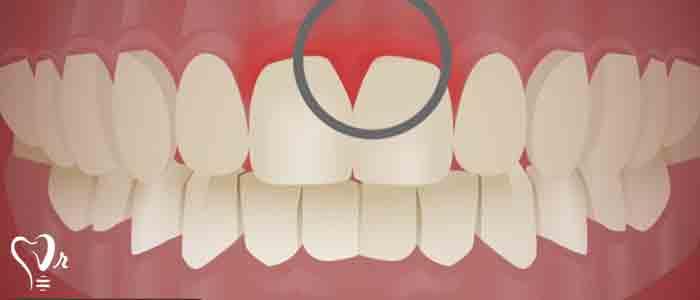 بیماری های دندان و لثه - دندان ها و لثه ها