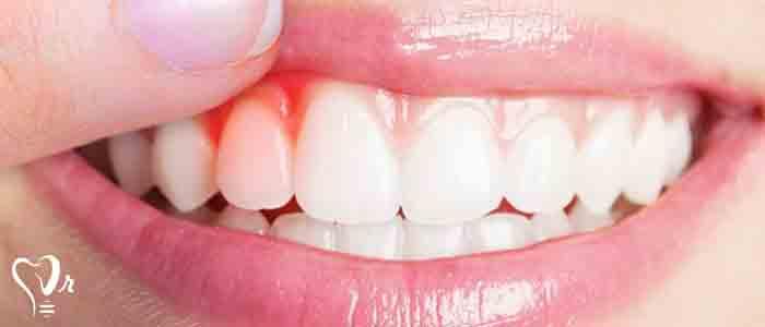 بیماری های دندان و لثه - عاج و پولیب