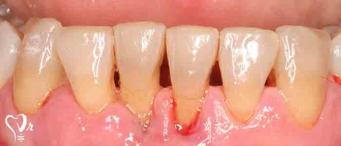 بیماری های دندان و لثه - استخوان های فک