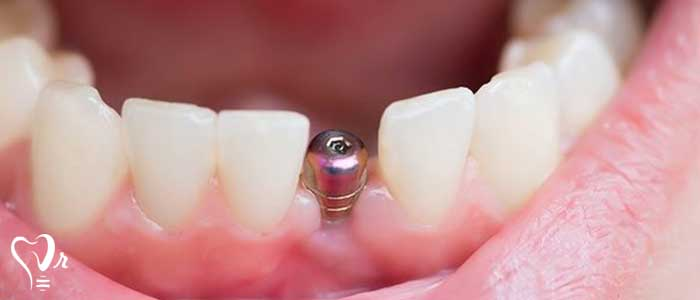درون کاشت دندان - استخوان فک