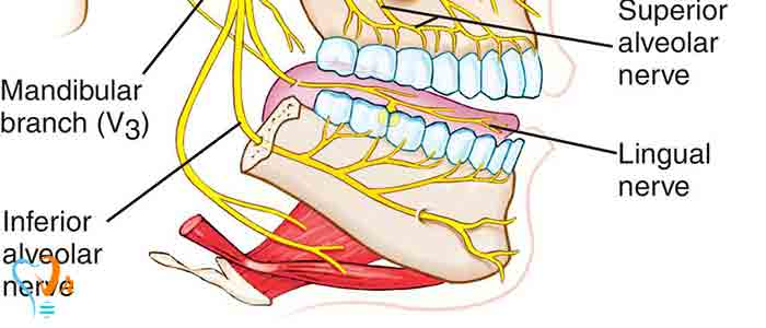 عصب کشی دندان - درد شدید دندان