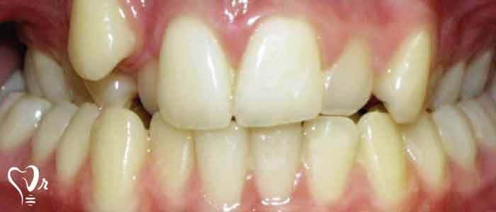 فواید مرتب شدن دندان ها چیست؟
