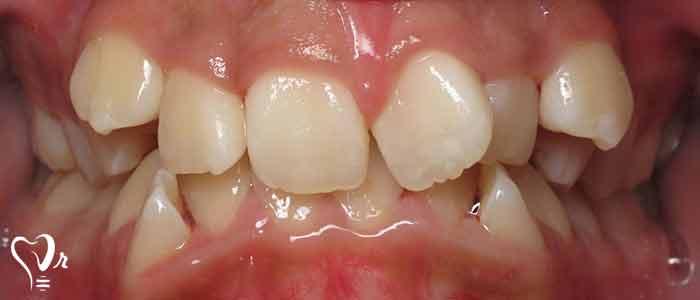 درمان بهم ریختگی دندان ها چیست؟