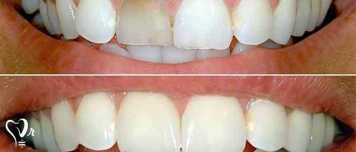 بلیچینگ دندان های غیر زنده - دندان عصب کشی شده