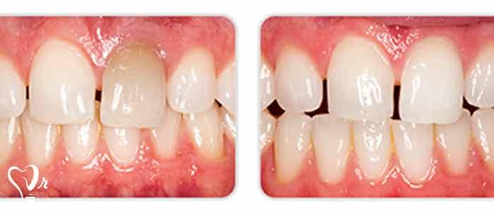 بلیچینگ دندان های غیر زنده - تغییر رنگ پس از درمان ریشه