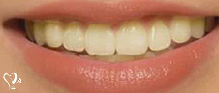 بلیچینگ دندان های زنده - رنگ فلوروزیس