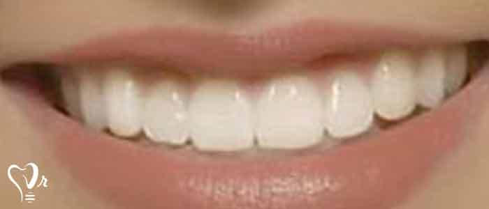 بلیچینگ دندان های زنده - پراکساید هیدروژن
