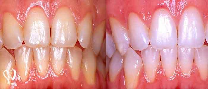 بلیچینگ دندان های زنده - رنگ مواد ترمیمی