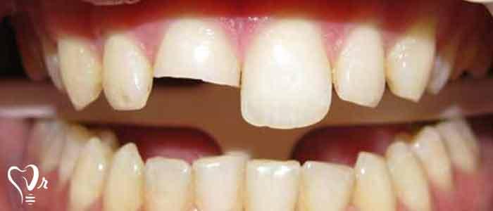 ترمیم دندان های آسیب دیده - افزایش طول تاج