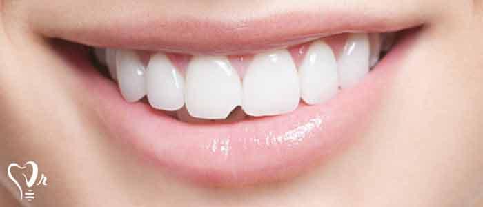 ترمیم دندان های آسیب دیده - ترمیم یا بازسازی دندان