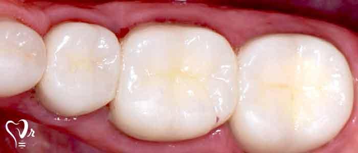 ترمیم دندان با کامپوزیت - پر کردن دندان با کامپوزیت