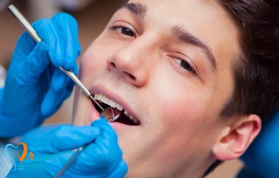 کشیدن دندان عقل و نکات مهم آن