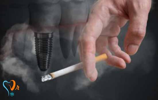 ایمپلنت در افراد سیگاری و افراد با استخوان های به شدت تحلیل رفته