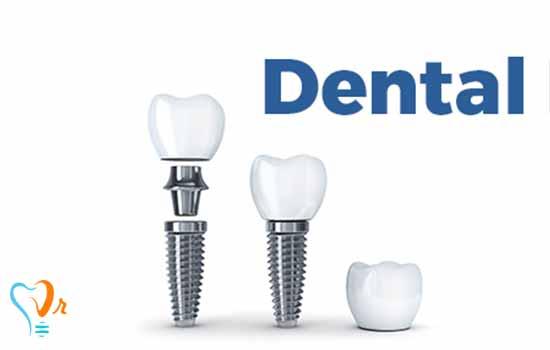 تفاوت میان ایمپلنت های دندانی با برندها و کشورهای سازنده مختلف