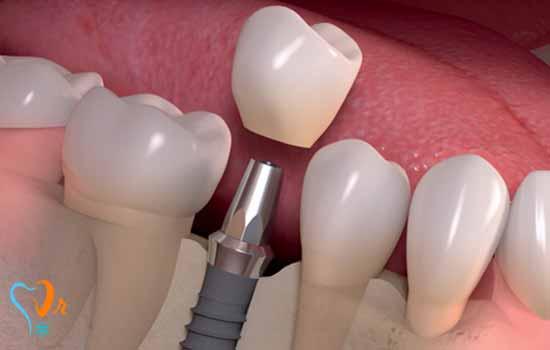 طول عمر ایمپلنت دندانی چقدر می باشد؟