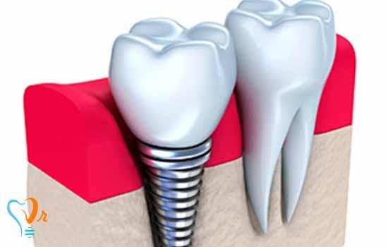 روش های درمان ایمپلنت دندان