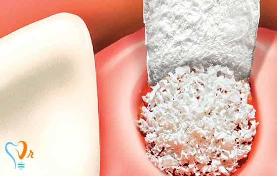 انواع پیوند استخوان در ایمپلنت های دندان