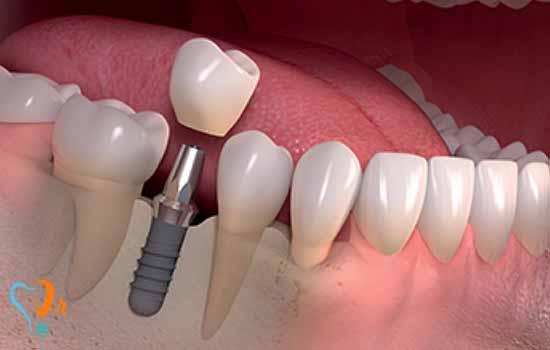 بارگذاری فوری در ایمپلنت دندان به چه صورت است؟