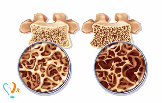ایمپلنت دندان برای بیماران با پوکی استخوان