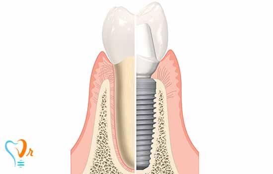 تعریف ایمپلنت دندان