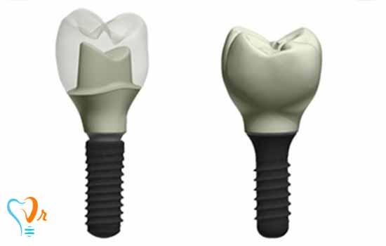 اطلاعات ایمپلنت دندان
