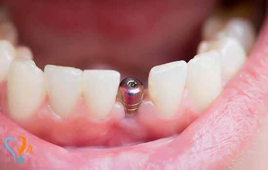 موارد تجویز ایمپلنت دندان