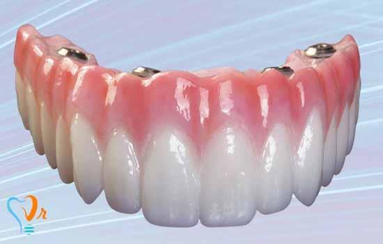 ایمپلنت و کاشت دندان در یک روز