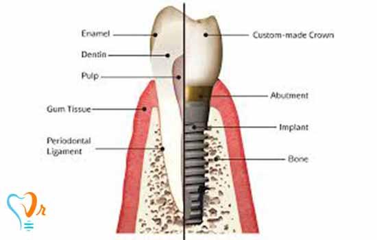 اجزای ایمپلنت دندانی