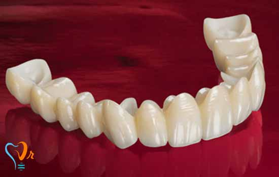 Advantages of  Prosthesis Supported by Dental Implants Part 1