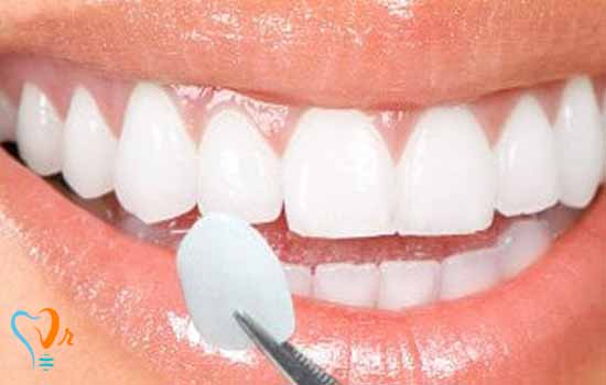 کامپوزیت دندان | کامپوزیت ونیر | قیمت کامپوزیت دندان
