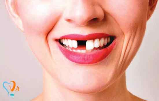 فقدان تک دندان