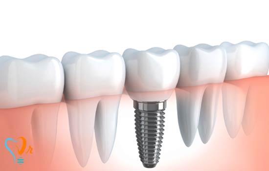 درون کاشت دندانی