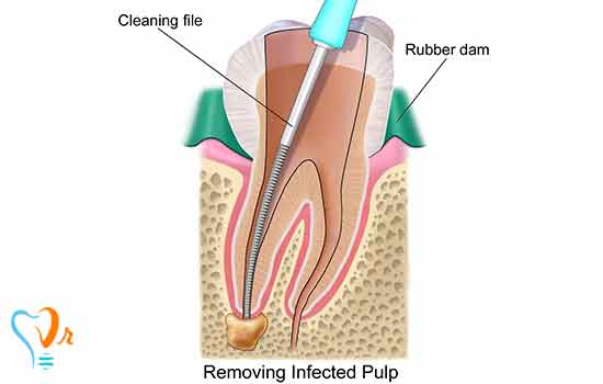 Pain After Root Canal Therapy