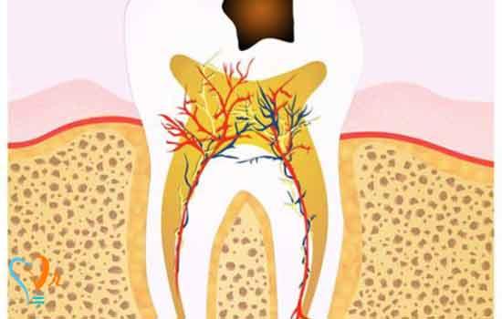 مراحل درمان ریشه چیست؟