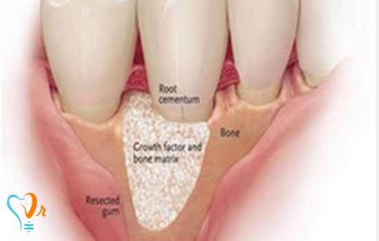 جراحی استخوان (Pocket Depth Reduction)